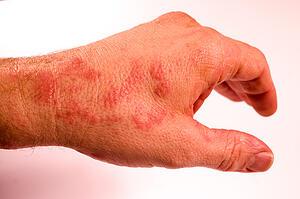 rash on hand